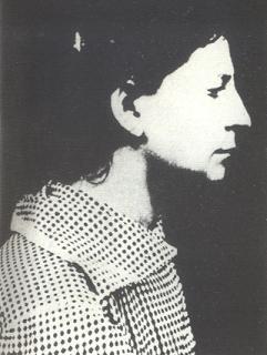 Fanni Kaplan